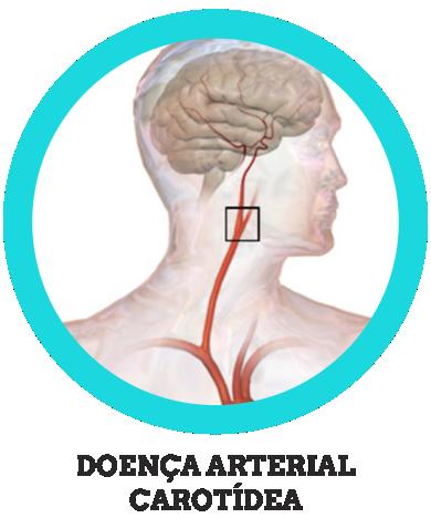 Doença Arterial Carotídea
