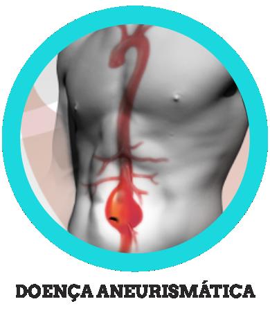 Doença Aneurismática